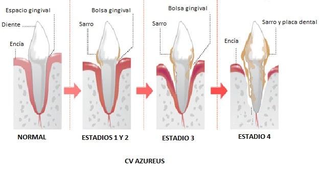 Los diferentes grados de la enfermedad periodontal que se producen en los dientes del perro a medida que avanza la enfermedad
