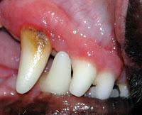 En el inicio de la enfermedad periodontal solo se ve un enrojecimiento de la encía (gingivitis) como la de la fotografía y el inicio de acúmulo de sarro. Hay que evitar que este proceso siga su curso y vaya a más en todo momento.